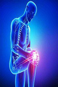 Knee Fracture